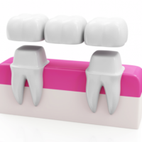 dental-crowns-and-bridges-1-1